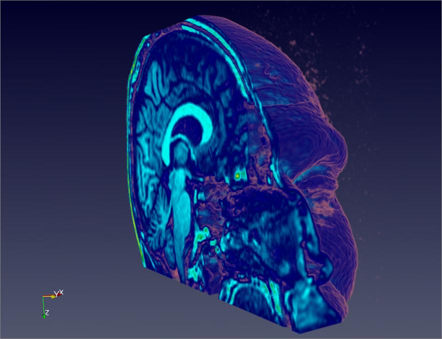 Head Slice (MRI)